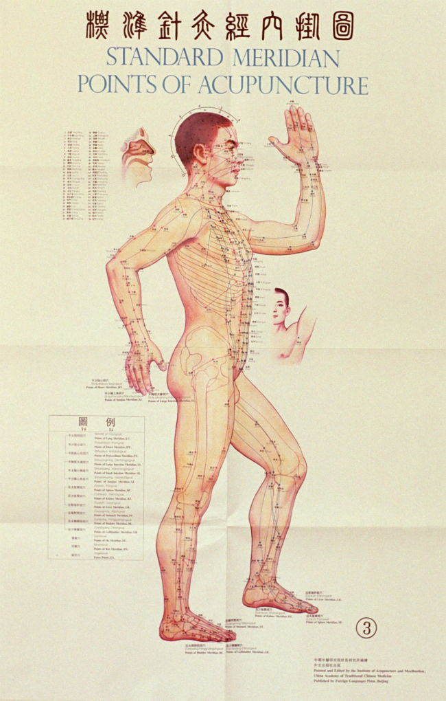 acupuntura infografia
